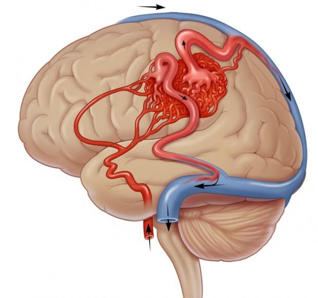 avm hersenen