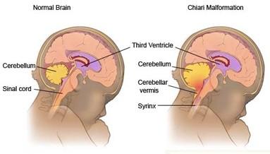 open en gesloten spina bifida