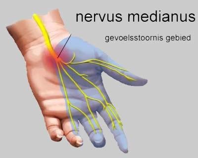 zenuwbeknelling schouder symptomen