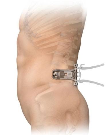 lumbar transforaminal epidural steroid injection risks